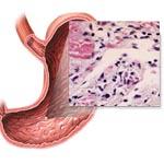 Гастроэнтерит — воспаление желудочно-кишечного тракта