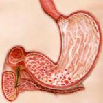 Лечение и диета при эрозивном гастродуодените