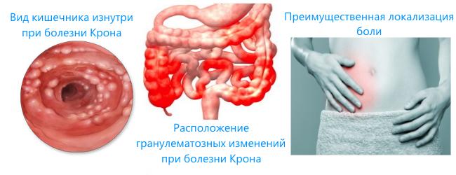Болезнь Крона: симптомы, лечение, прогноз жизни, диета