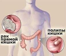 Болезнь способствует развитию рака