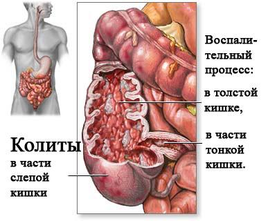 Хронический колит кишечника: симптомы и лечение, диета