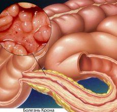 Симптомы, диагностика и лечение болезни Крона