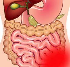 Ишемический колит — болезнь толстого кишечника