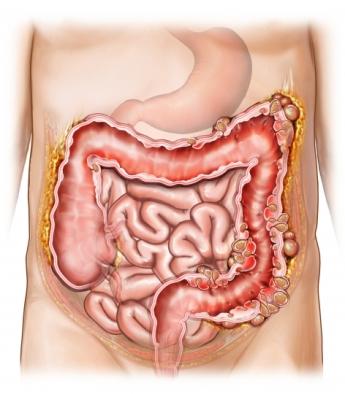 Пораженный кишечник в разрезе