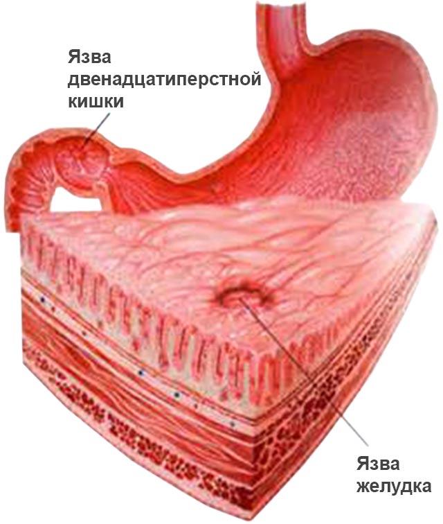 Стенки желудка и кишки