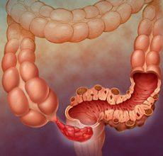 Симптомы дивертикулярной болезни толстой кишки