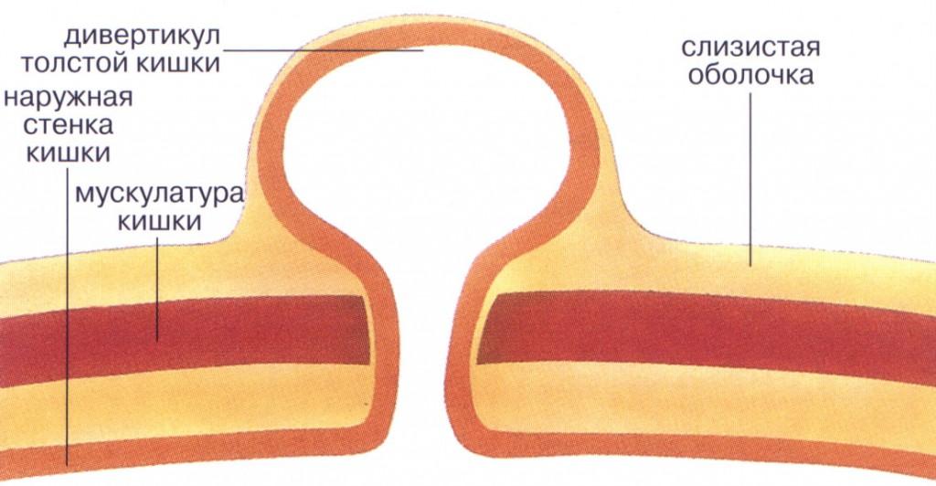 Стенка толстой кишки при заболевании
