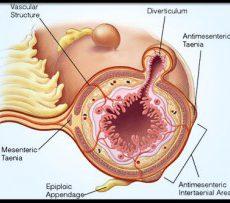 Лечение и осложнения при дивертикулезе сигмовидной кишки