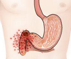 Симптоматика и лечение язвы двенадцатиперстной кишки