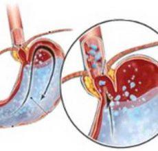 Симптомы и лечение гастрита с повышенной кислотностью