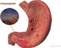 Поверхностный гастродуоденит — симптомы и лечение