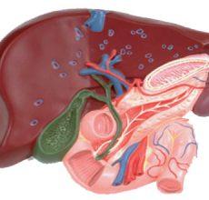 Симптомы, лечение и диета при холецистите