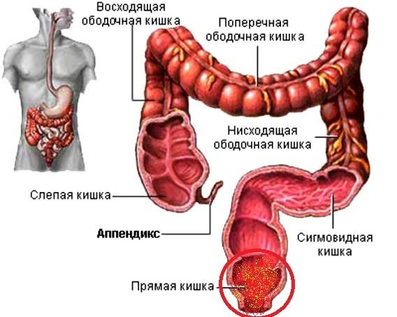 Проктит: симптомы, лечение, народные средства, диета