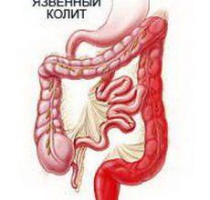 Неспецифический язвенный колит — воспаление слизистой