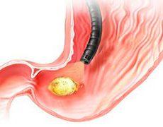 Лечение и диета при воспалении двенадцатиперстной кишки