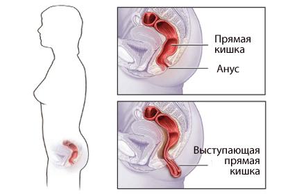 Выпадение прямой кишки: симптомы и лечение в домашних условиях