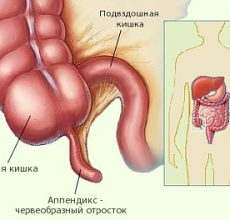 Местонахождение, функции и болезни аппендикса