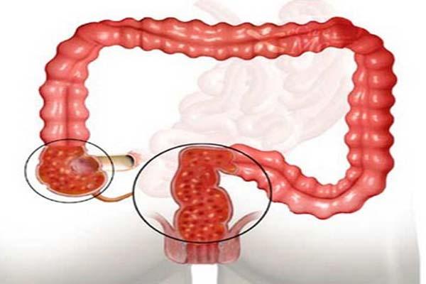Диета при язвенном колите кишечника – что нужно кушать?