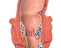 Причины и способы лечения трещин прямой кишки