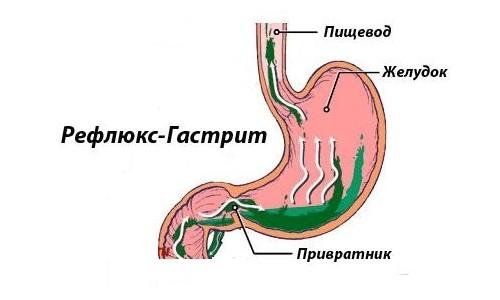 Желудочный сок в пищеводе