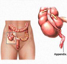 Особенности развития аппендицита у детей
