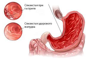 Гастрит с пониженной кислотностью: симптомы и лечение болезни