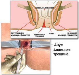 analnaya-treshina-novaya-metodika-lecheniya