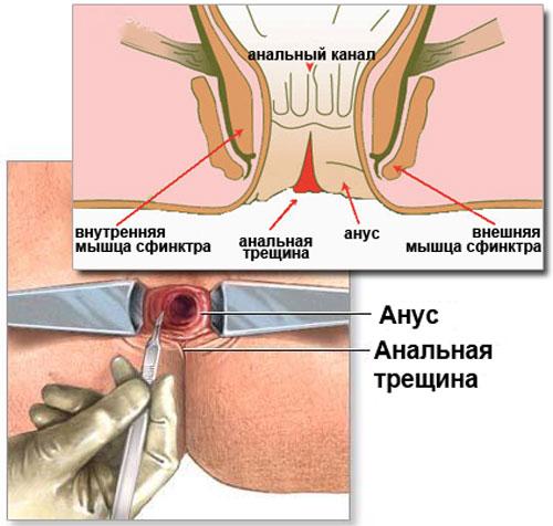 Анатомия болезни