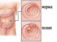 Полип толстой кишки — очаговое разрастание клеток