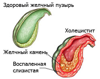 Отличия здорового и воспаленного пузыря