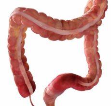 Стадии и симптомы рака сигмовидной кишки