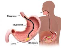 Симптомы и лечение зернистого гастрита