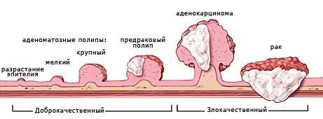 Рак сигмовидной кишки: первые симптомы, прогноз