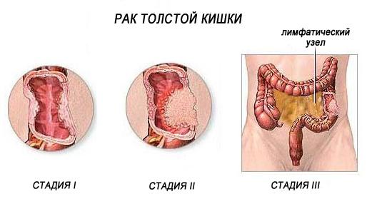 Рак ободочной кишки: симптомы, стадии, лечение