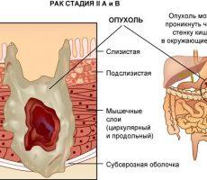 Симптомы и лечение рака толстой кишки