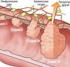 Лечение и прогноз аденокарциномы сигмовидной кишки