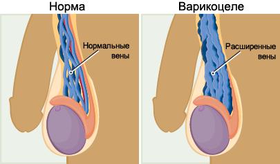 Варикоцеле - причина болезненных ощущений