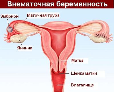 Беременность вне матки