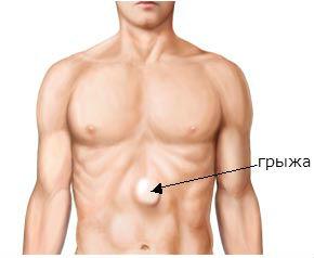 Грыжа белой линии живота: симптомы, лечение, операция