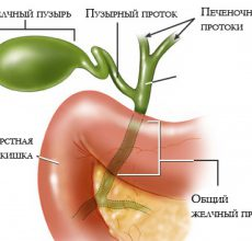 Специфика лечения бескаменного холецистита