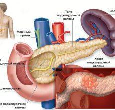 В чем выражаются симптомы панкреатита у мужчин?