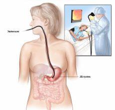 Воспаление желудка при остром гастрите