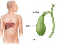 Рекомендации по лечению перегиба желчного пузыря