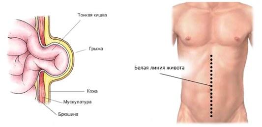 Заболевание с выпячиванием внутренних органов