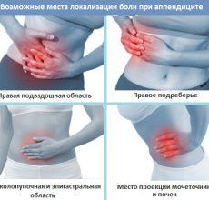 Способы диагностики аппендицита