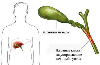 Острый холецистит: симптомы, лечение, диагностика