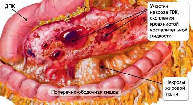Панкреатит поджелудочной железы