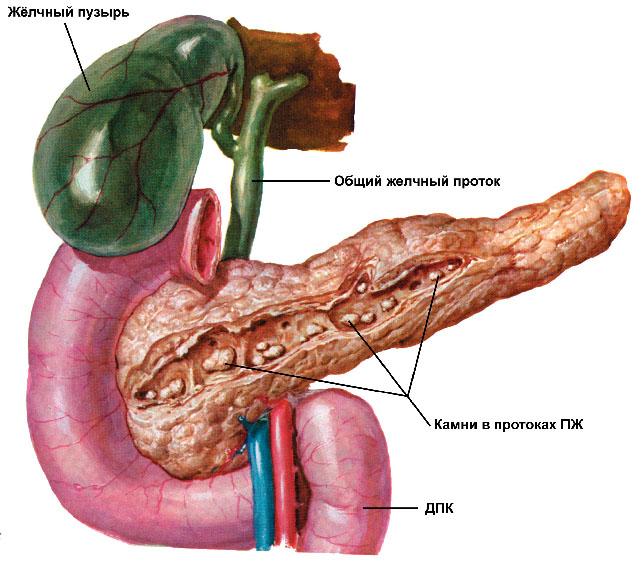 Симптомы панкреатита у женщины: каковы признаки заболевания?