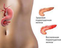 Виды и классификации панкреатита