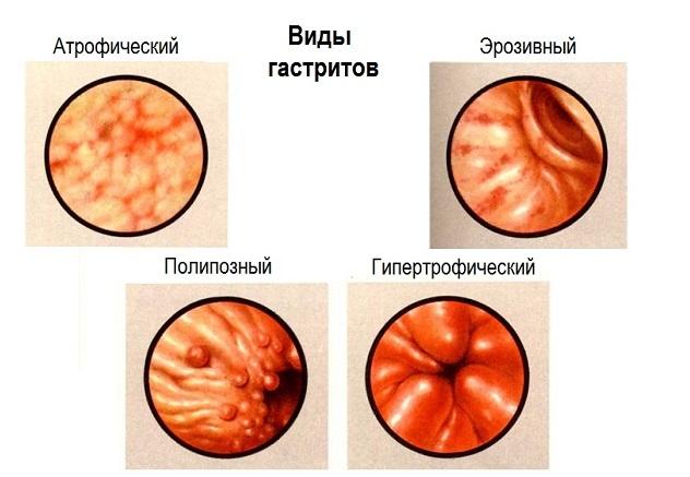 Разновидности заболеваний желудка